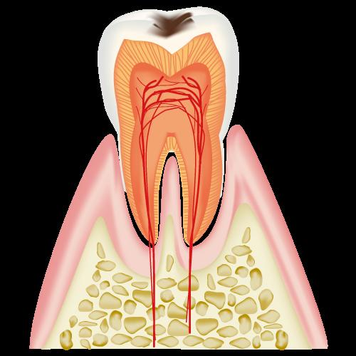 虫歯はこうして進行します